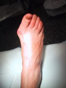 All the Bunion Surgery Codes a Podiatrist will need