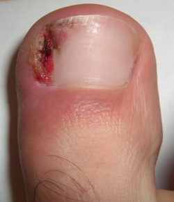 ICD 10 Codes for Paronychia and Ingrown Toenails