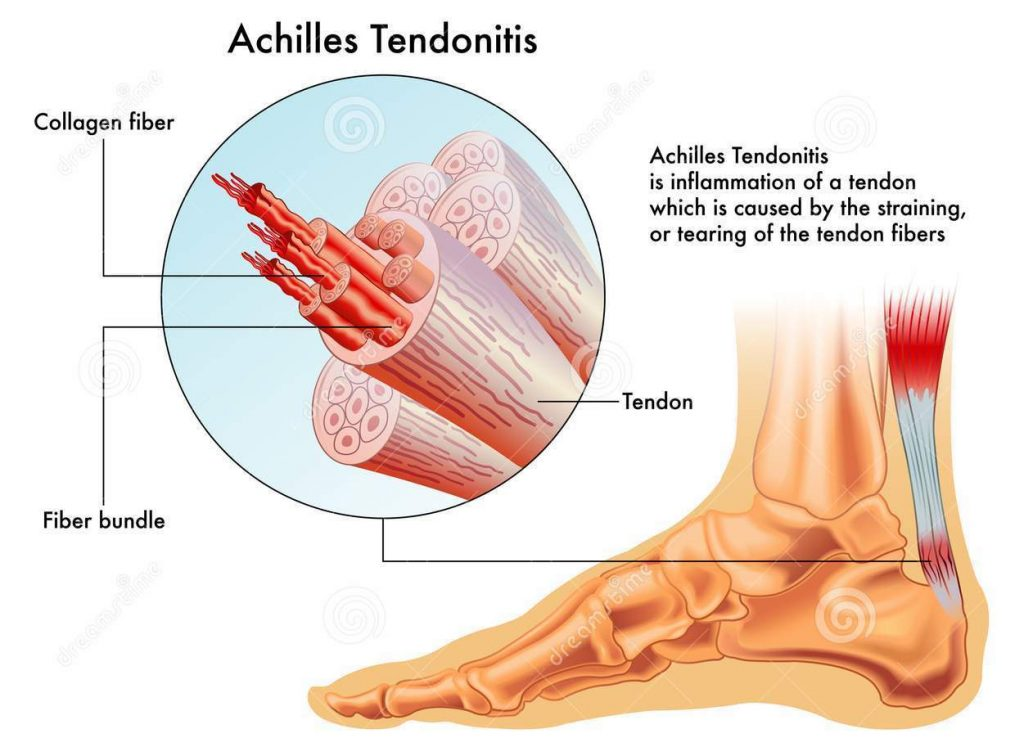 Achilles Tendonitis Billing and Coding Questions Answered