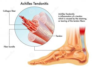 How to bill PRP Injections for Achilles Tendonitis