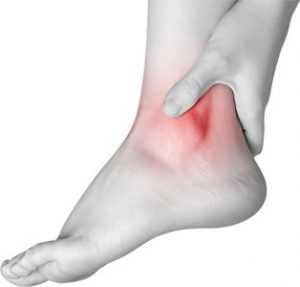 ICD 10 Codes for Ankle, Foot and Toe Sprains