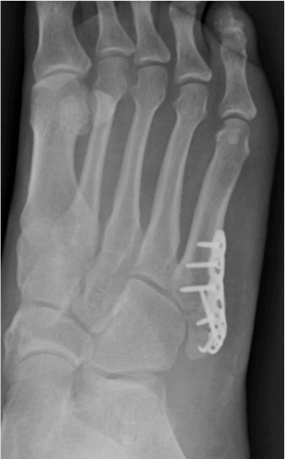 Podiatrist Guide to Billing Metatarsal Fractures: Questions Answered