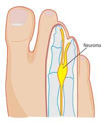 ICD 10 Codes for Morton's Neuroma
