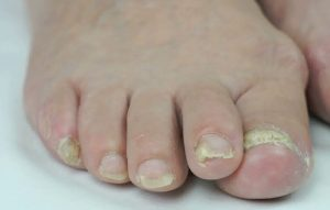 Onychomycosis of the feet ICD 10 Code