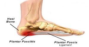 ICD 10 Billing Code for Plantar Fasciitis