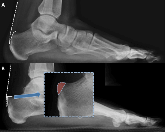 Billing and Coding Haglunds deformity or Retrocalcaneal exostectomy Surgery