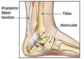 Podiatrist Guide to Billing and Coding Tibialis Posterior Tendon Tendonitis