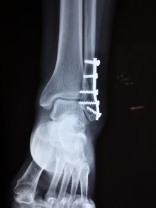 All the X-Ray CPT Codes that a Podiatry practice will ever need
