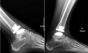 How to bill and Code an Ankle Arthroplasty revision